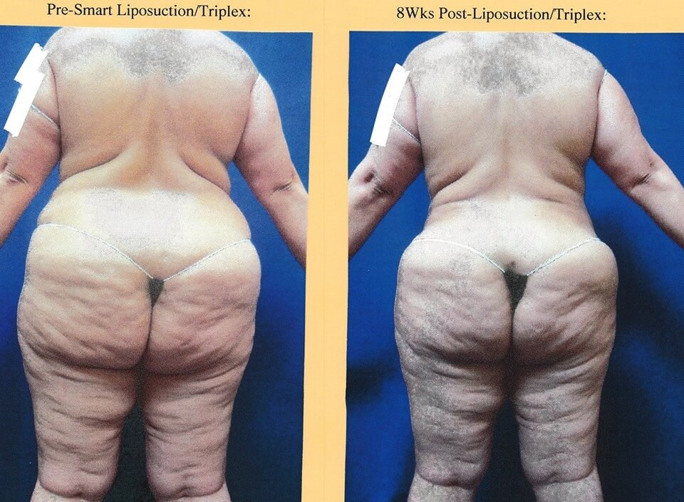 Liposuction SmartLipo Triplex Before