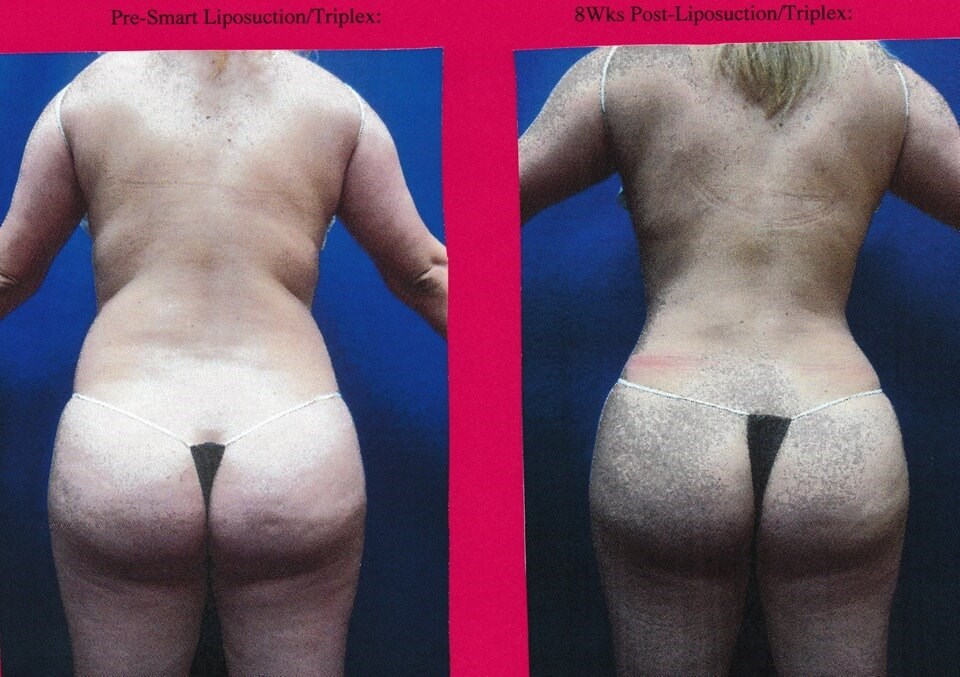 Liposuction SmartLipo Triplex After