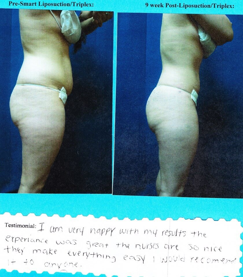 Smart Liposuction Triplex Before