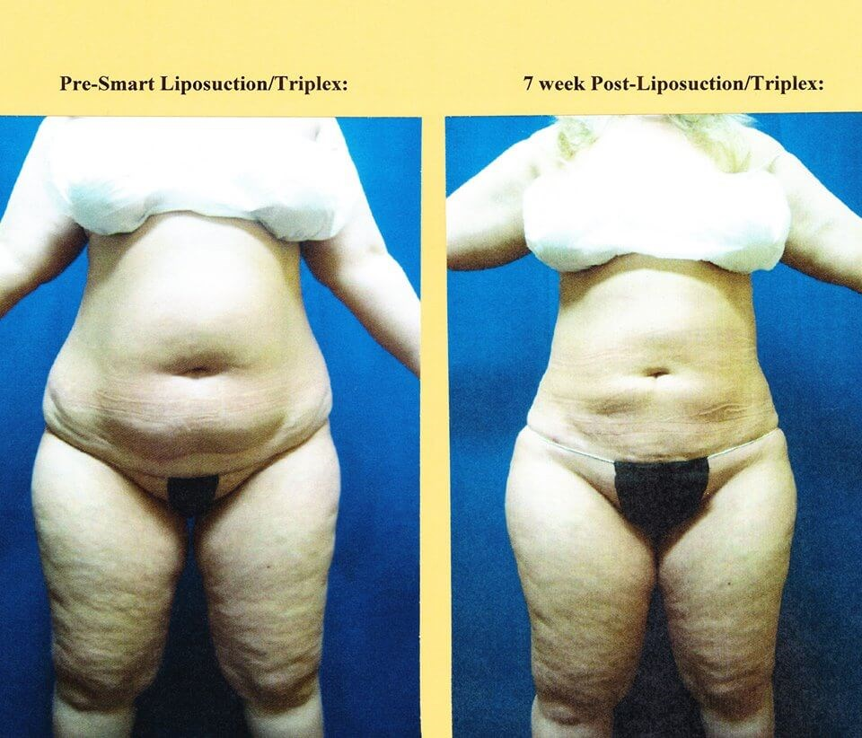 Smart Lipo Triplex Before