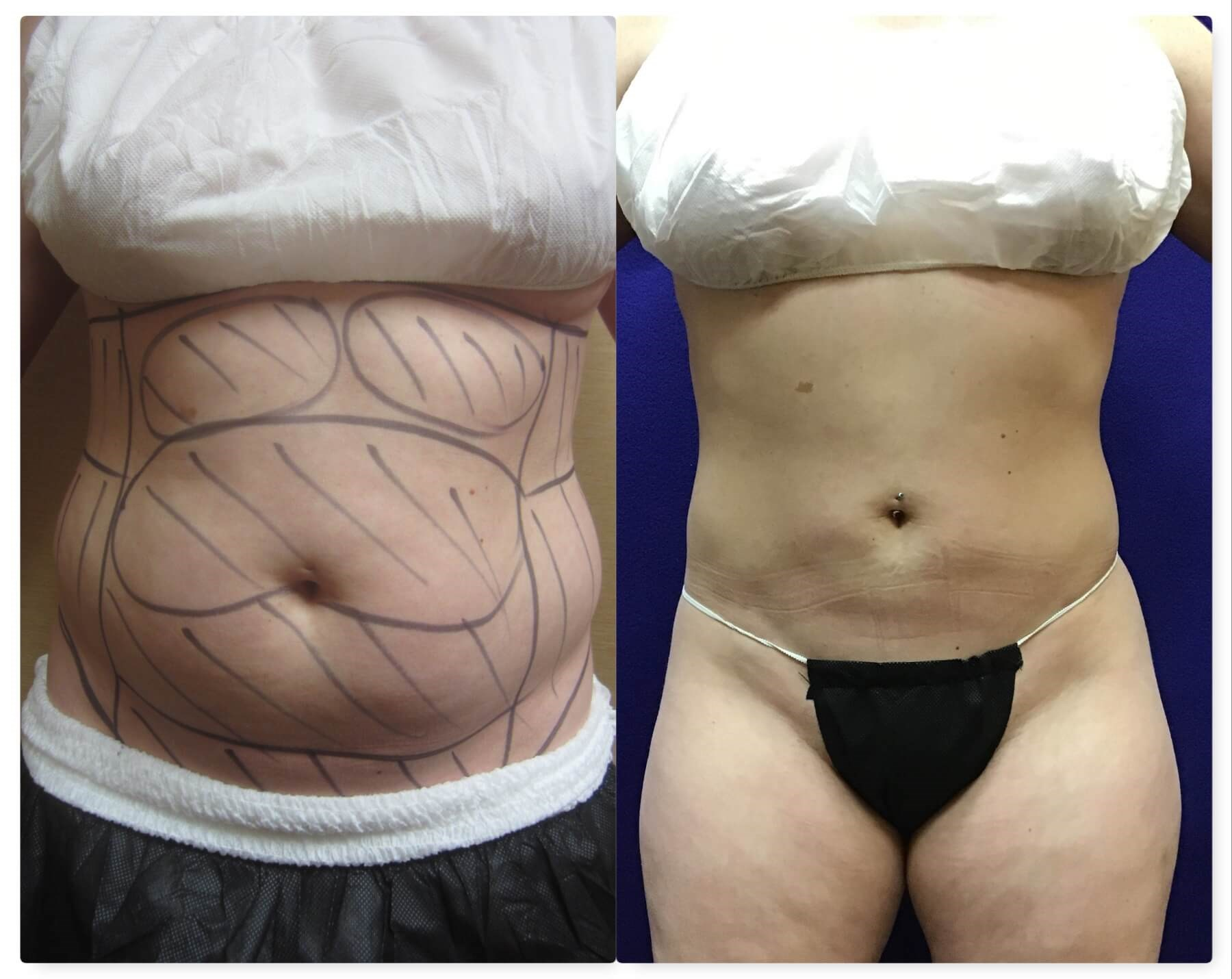 Smartlipo Triplex After