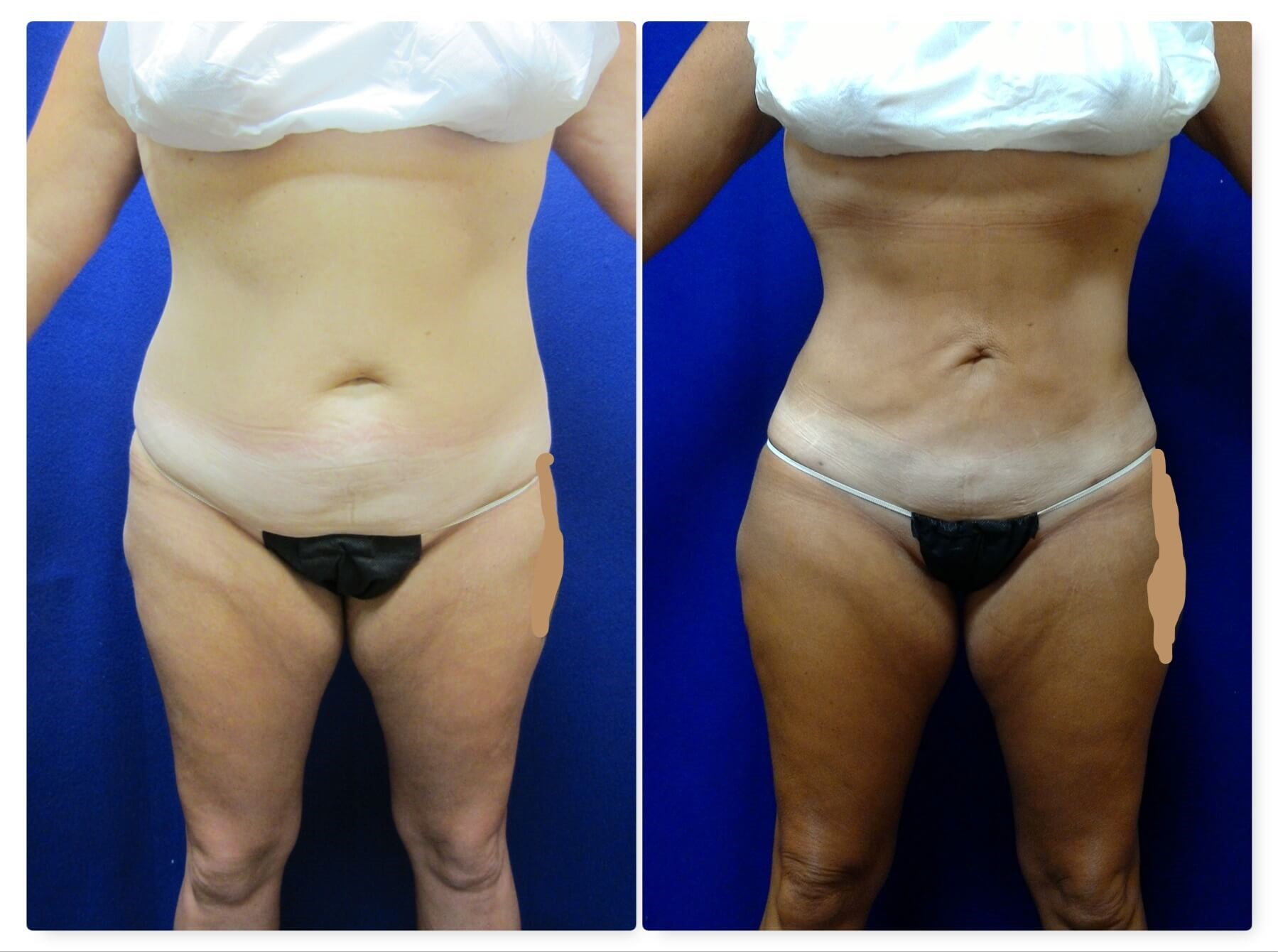 Smartlipo Triplex Before