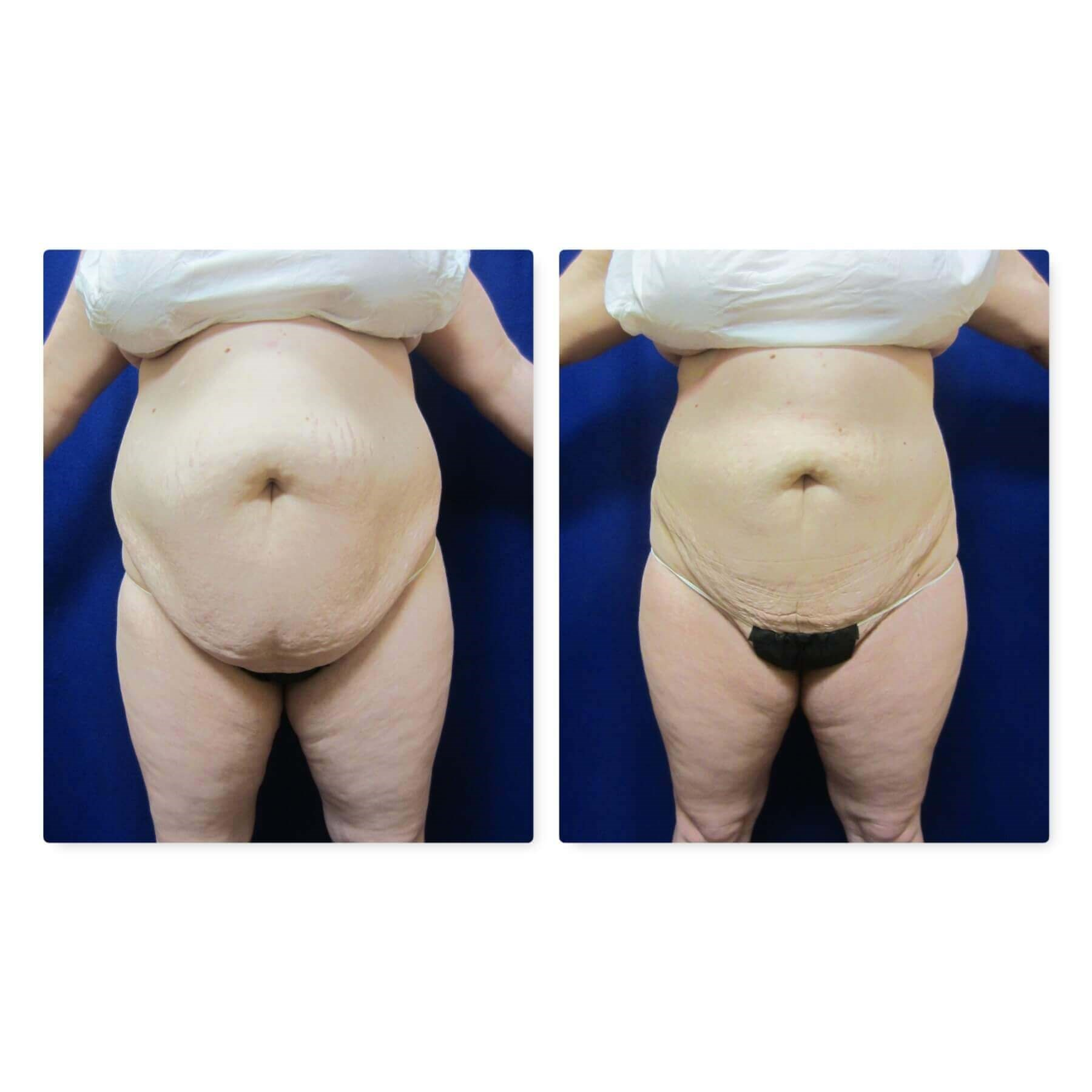 Smart Liposuction Triplex After