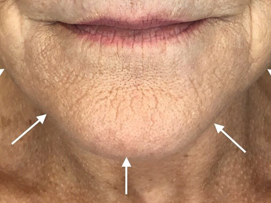 UItherapy After