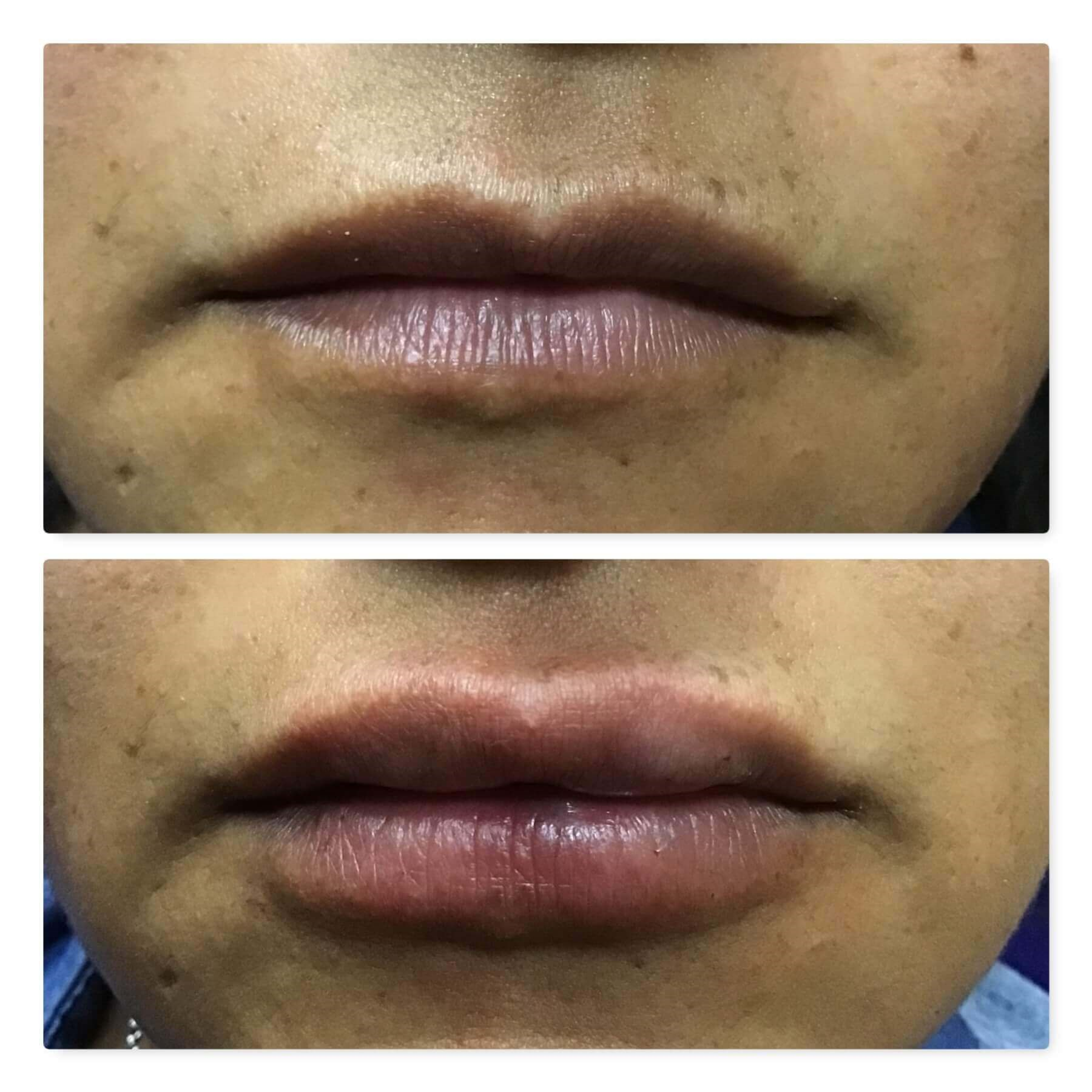 Juvederm Ultra Plus XC Before