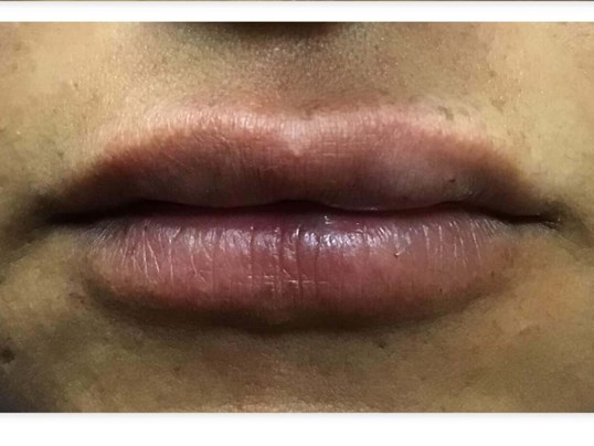 Juvederm Ultra Plus XC After