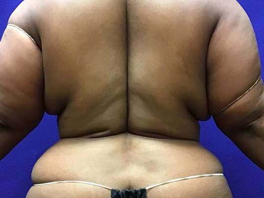 Smart Liposuction Triplex 8 week Post