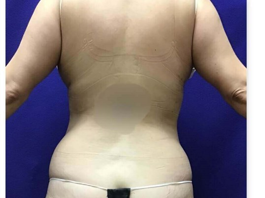 Smart Liposuction Triplex 8 weeks post