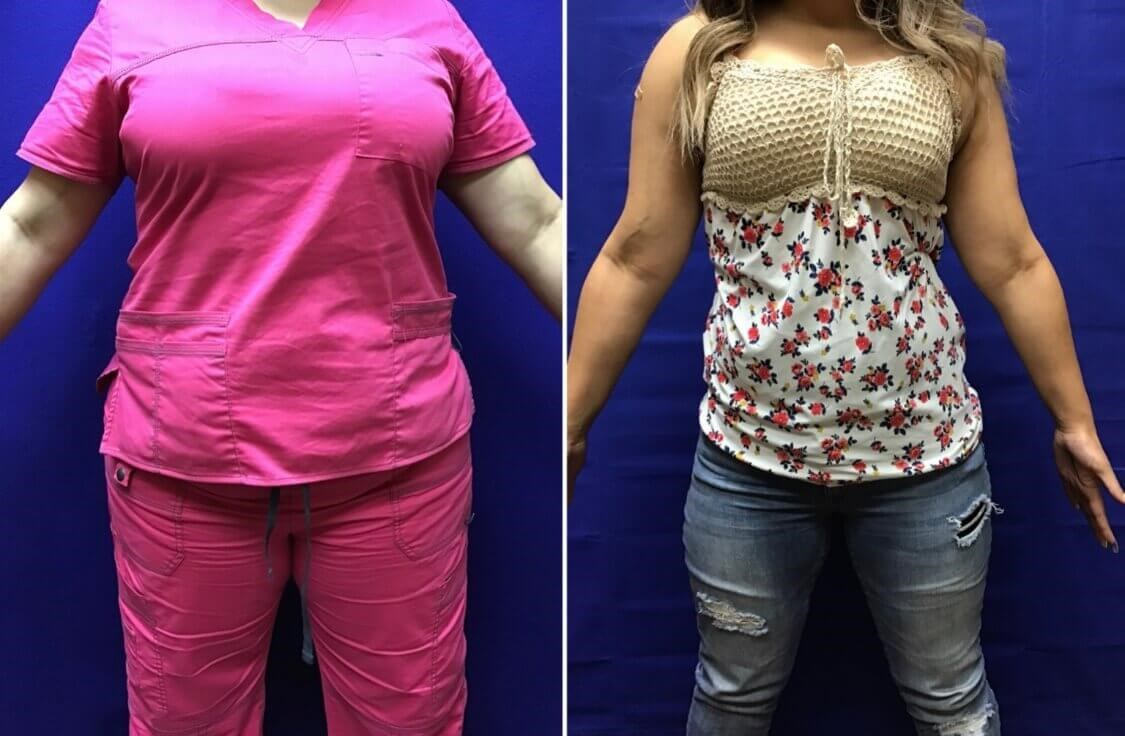 Center for Medical Weight Loss Before