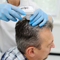 PRP Therapy for Hair*